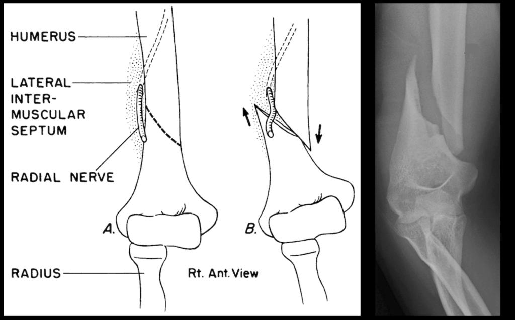 Holstein–Lewis fracture