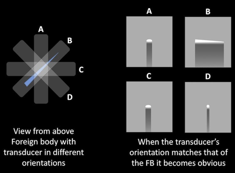 Image 2 explanation FB orientation