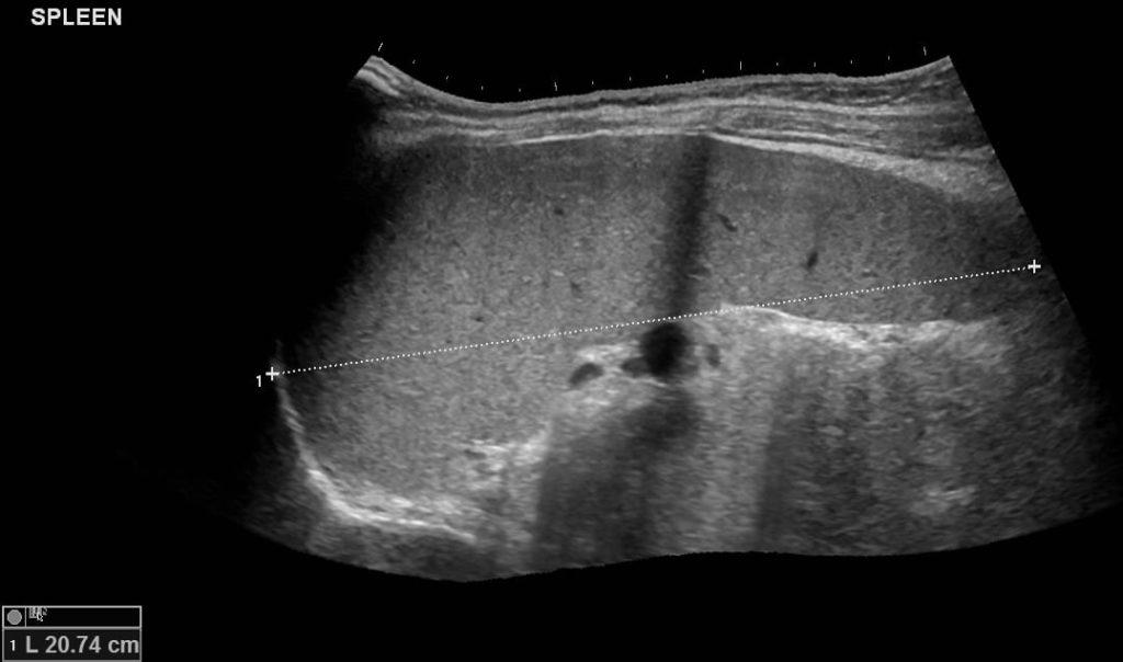 Image LITFL Top 100 Ultrasound 45 07 Spleen