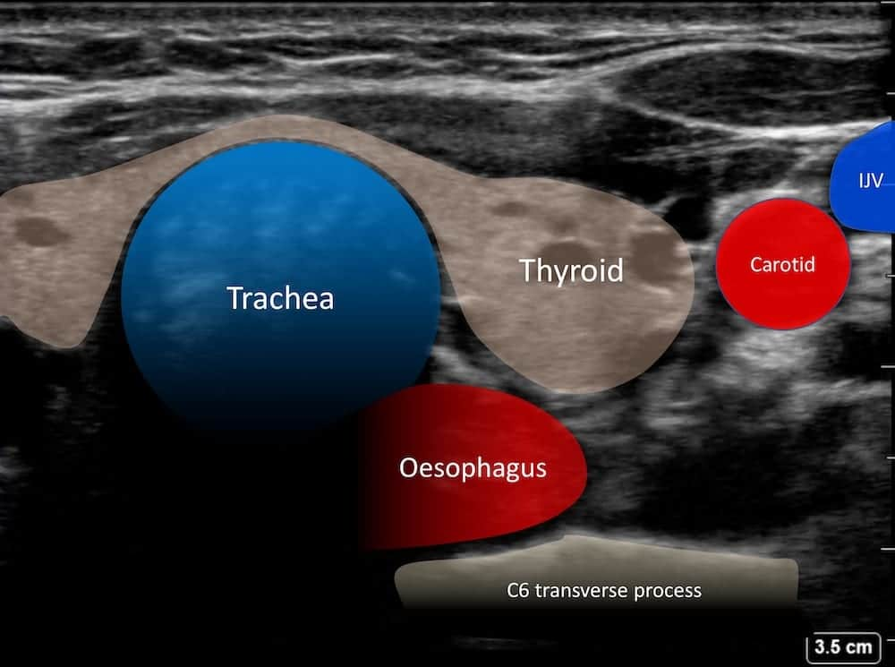 LITFL Top 100 Ultrasound 035 02 tracheal intubation annotation