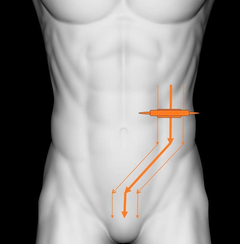 LITFL Top 100 Ultrasound 037 Diverticulum examination technique