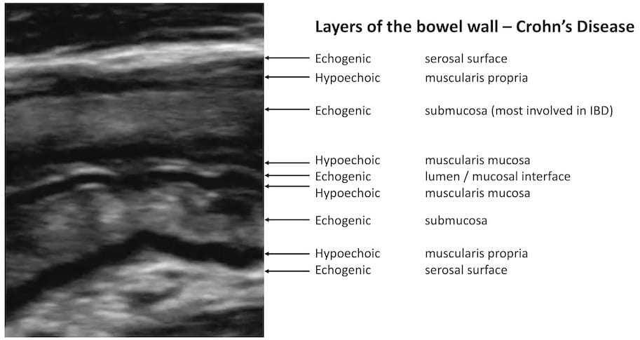 LITFL Top 100 Ultrasound 040 05 Chron's disease Layers of the bowel wall