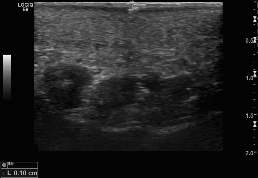 LITFL Top 100 Ultrasound 053 07 Trans of superficial FB