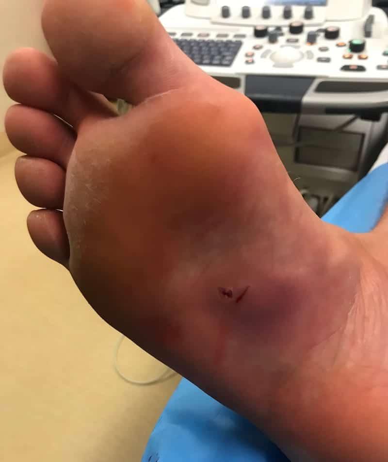 LITFL Top 100 Ultrasound 053 08 Post procedural wounds