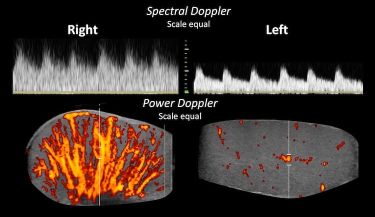 LITFL Top 100 Ultrasound 065 06 Spectral Doppler