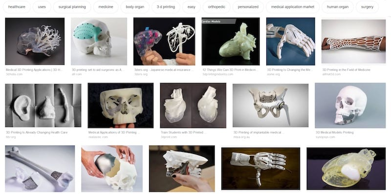 Medical 3D print Google images
