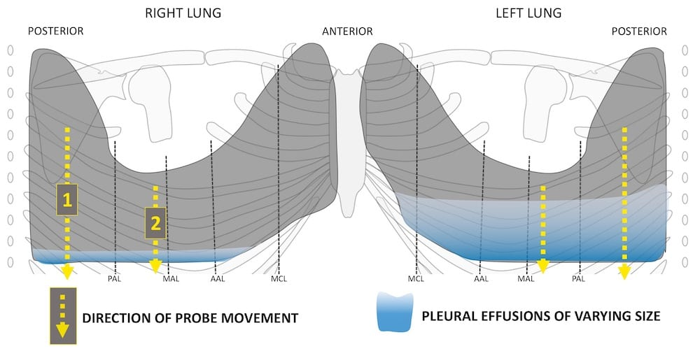 Pleural-effusion-varied