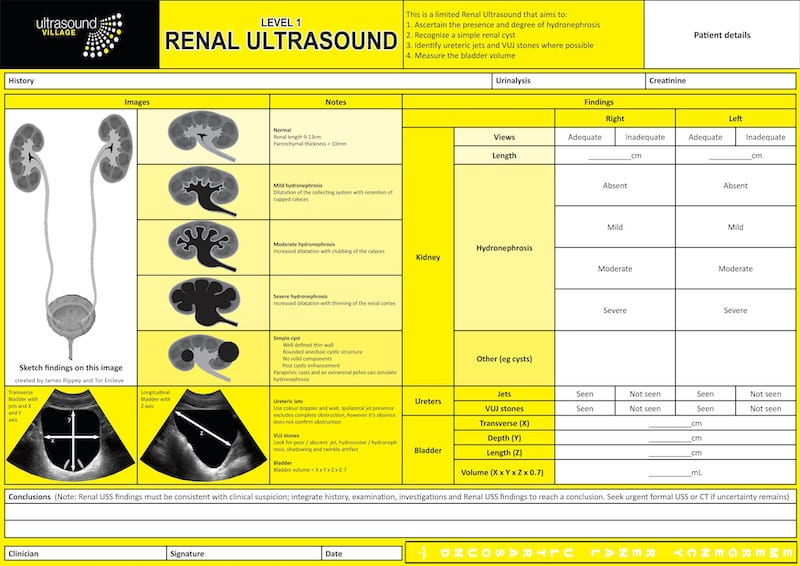 Renal Ultrasound Report 800