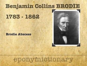 Sir Benjamin Collins Brodie (1783 – 1862) 340