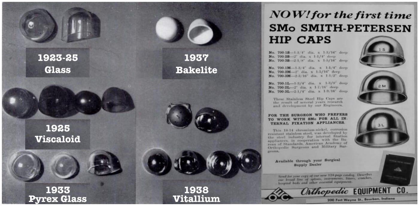 Smith-Petersen Hip caps history