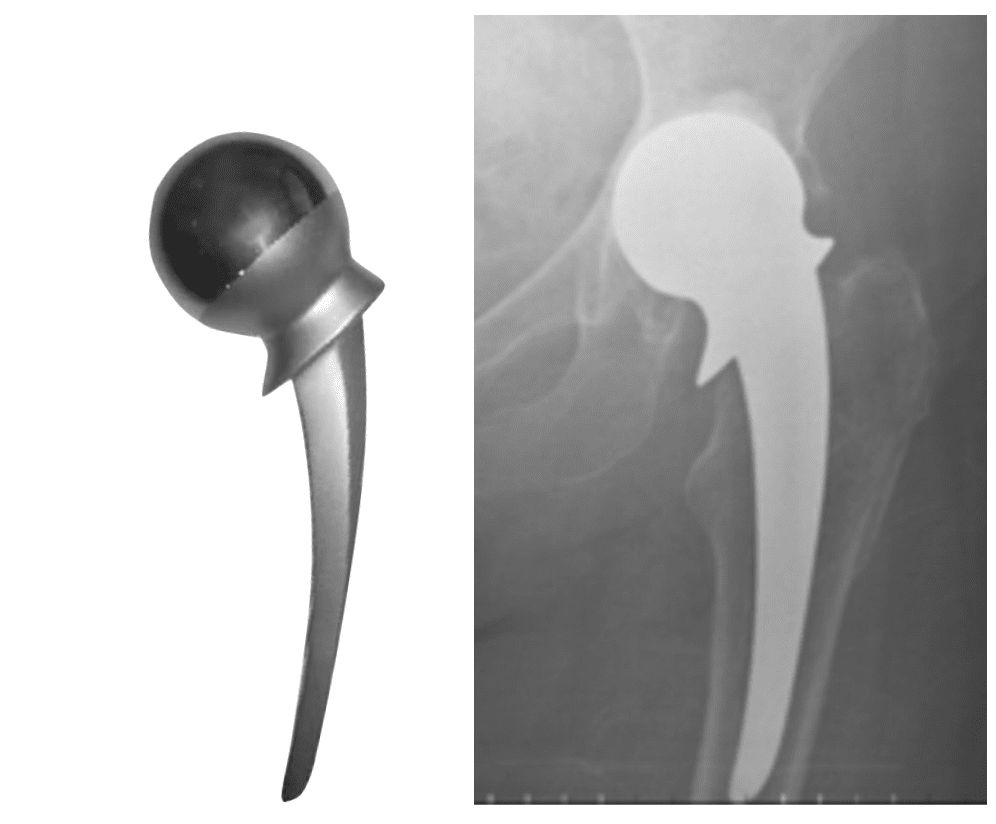 Thompson arthroplasty
