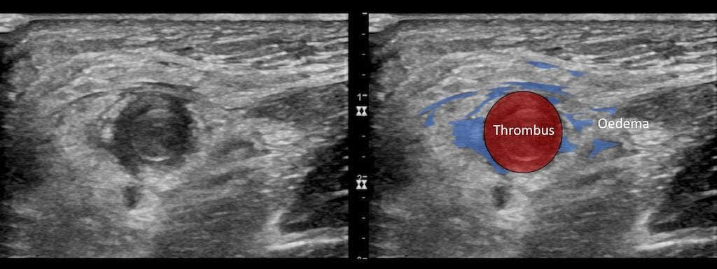 Ultrasound Case 081 05 key to image 2