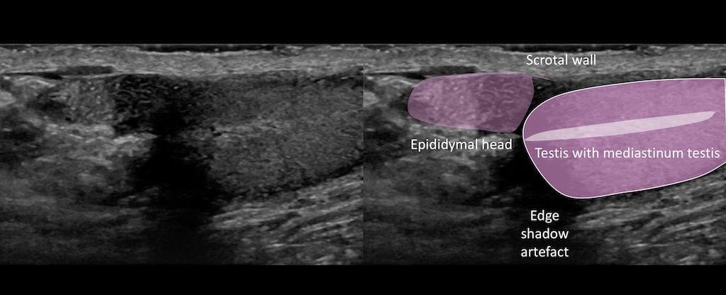 Ultrasound Case 082 02 Key to image 1 Megasperm