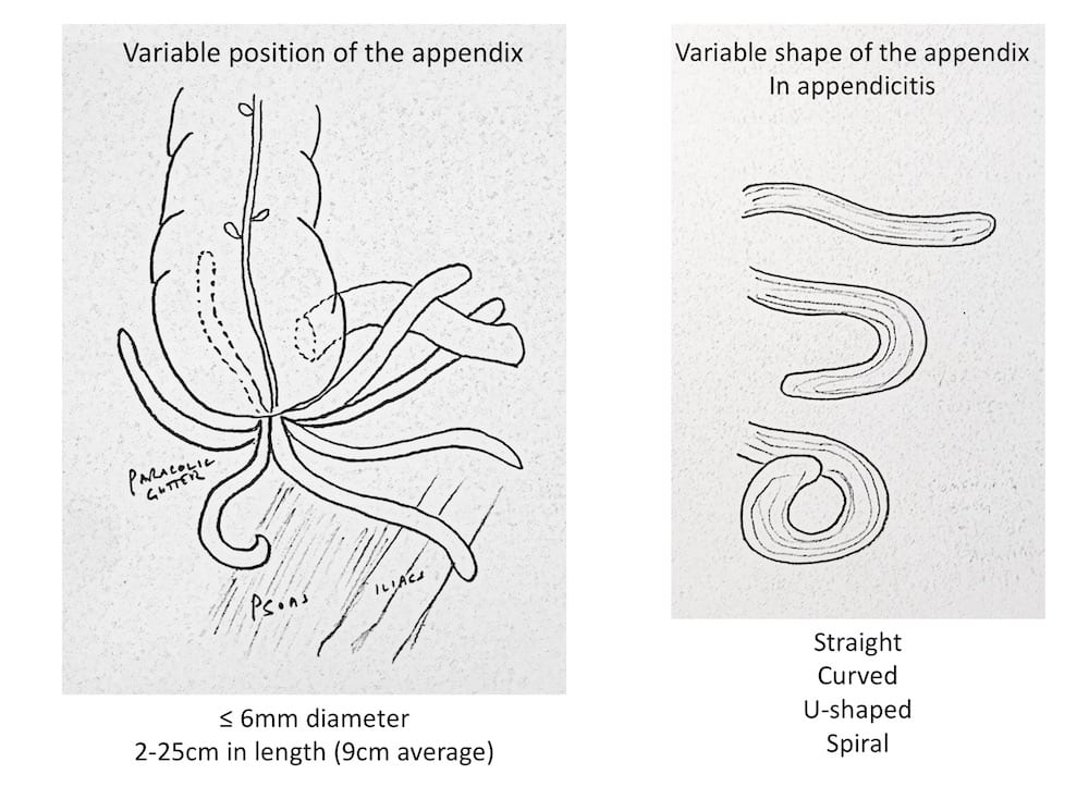 Ultrasound Case 083 04 Appendiceal positions