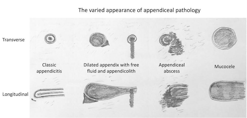 Ultrasound Case 083 05 Appendiceal pathology