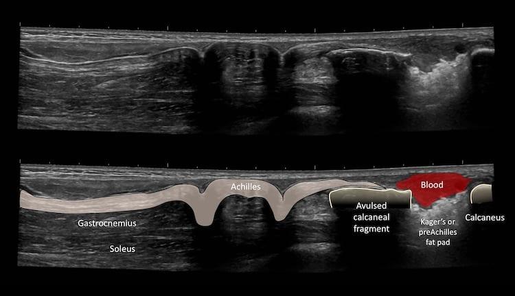Ultrasound Case 084 Key to image