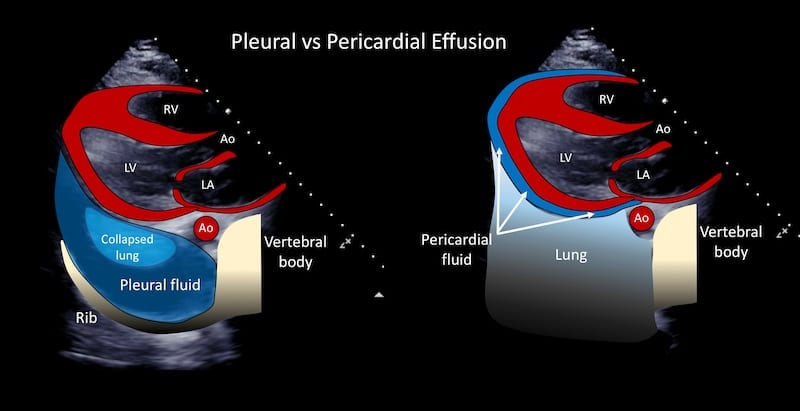 Ultrasound Case 094 Pleural vs pericardial effusion