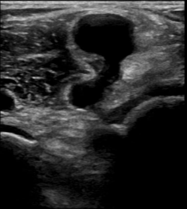Ultrasound Case 098 2 Bakers cyst