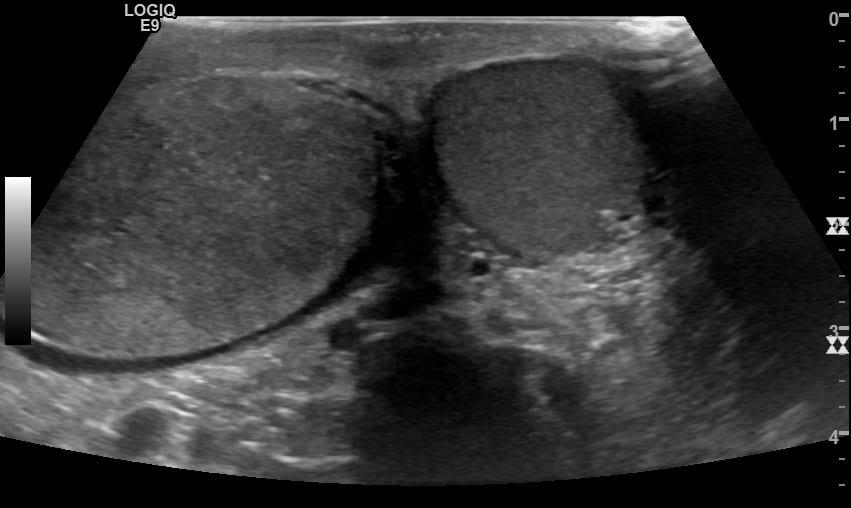 Ultrasound Case 099 3 transverse scrotum