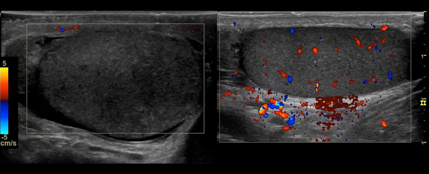 Ultrasound Case 099 5 Comparison of testes long sections
