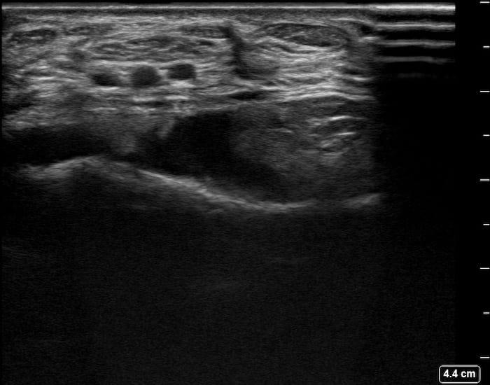 Ultrasound Top 100 LITFL 088 05