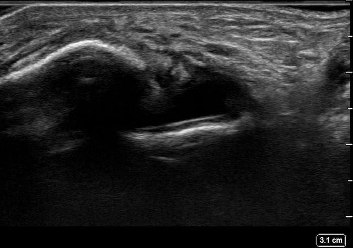Ultrasound Top 100 LITFL 088 06