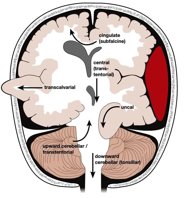 Brain herniation types