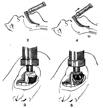 Macintosh Laryngoscope (1943)