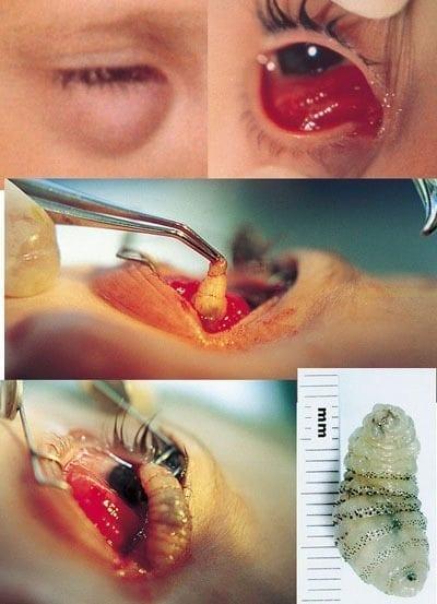 Myiasis eye
