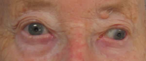 Neurological Mind-boggler 008 INO look left