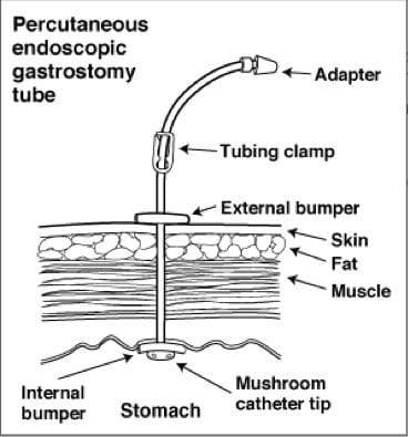 PEG tube