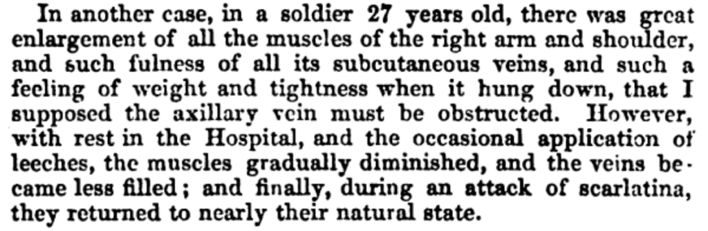Paget 1858 original description of effort thrombosis