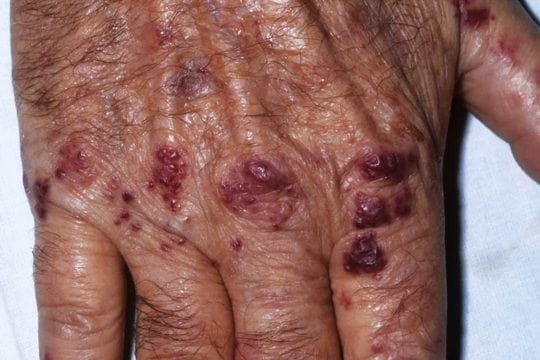 Palpable purpura hands