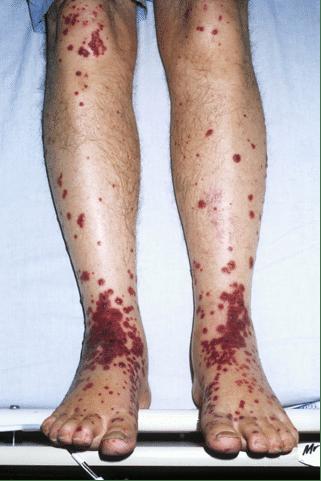 Palpable purpura legs
