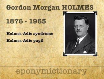 Sir Gordon Morgan Holmes (1876 – 1965) 340