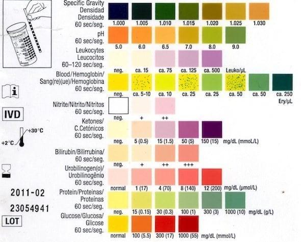 Dipstick Urinalysis Litfl Ccc Investigations