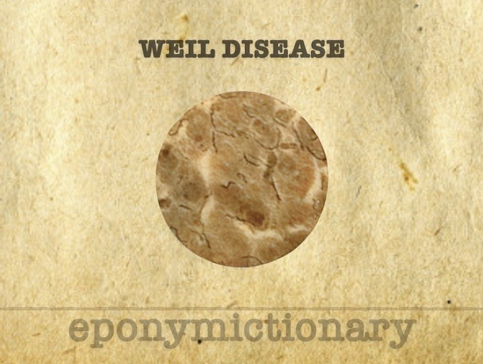 Weil disease 340 2