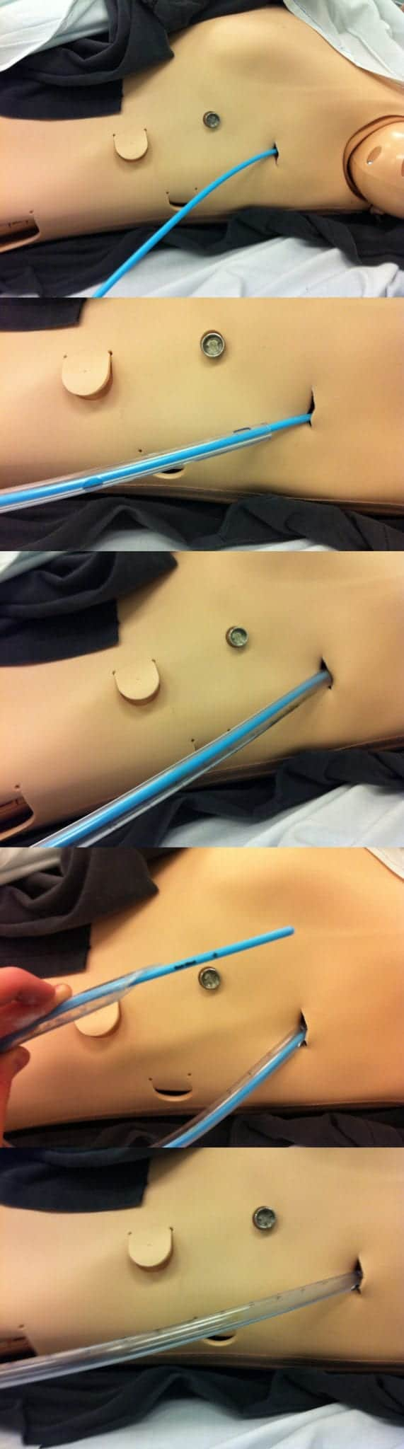 bougie chest tube