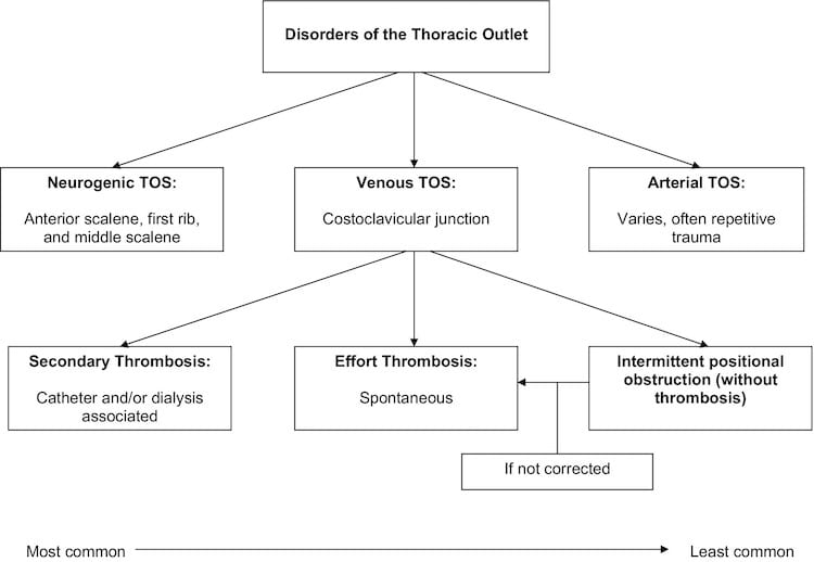 classification of thoracic outlet syndrome
