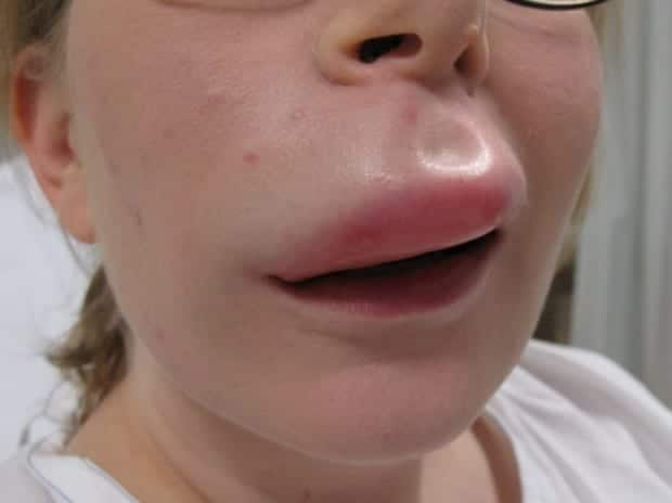 large_traumatic_angioedema_smile-1024x767