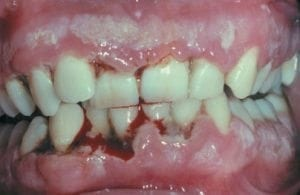 necrotizing ulcerative gingivitis