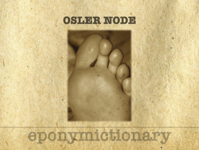 6aulvi Lbumcwm An osler's node is a painful red raised lesion on the hands or feet. https litfl com osler node