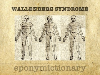 Wallenberg Syndrome 340
