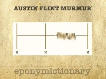 Austin Flint Murmur 340