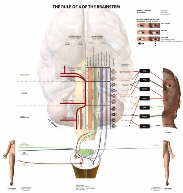 Brainstem Rule of 4 001