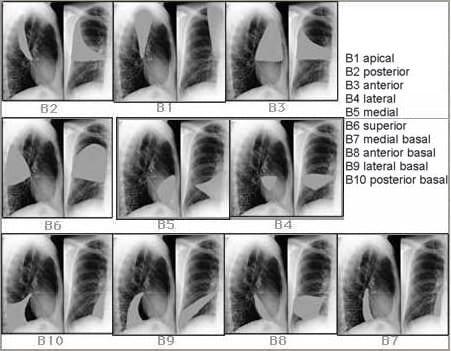 Bromchoscope lobes