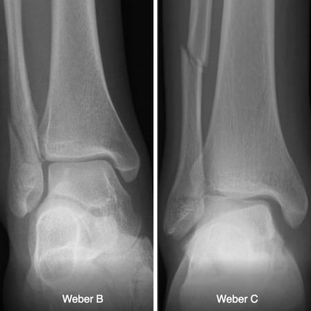 Danis Weber A B C ankle fracture 150 2