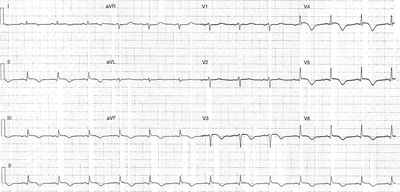 ECG Case 083 LITFL Top 100 EKG