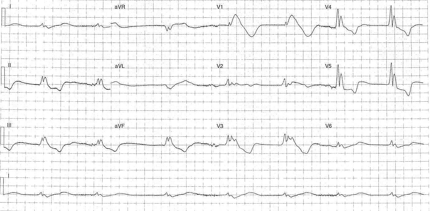 ECG Case 088 LITFL Top 100 EKG