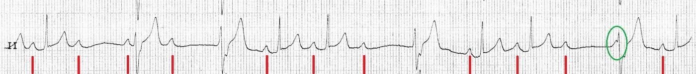 ECG Case 099b LITFL Top 100 EKG
